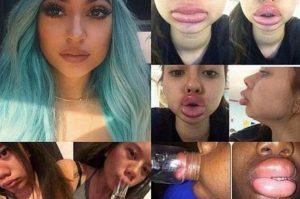 kylie-lips