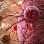 Info Shqip: Nëse bëni këtë veprim, rrezikoheni shumë nga kanceri, sidomos femrat