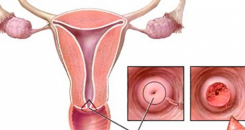 Info Shqip: Femra kujdes, këto janë simptoma që nuk duhet të injoroni kurrë