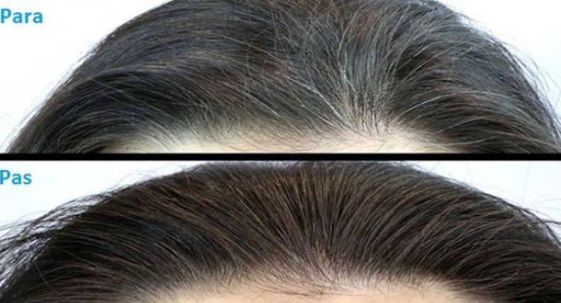Pija magjike për flokët e thinjura  nëse e përdorni siç duhet flokëve të thinjur i u kthehet ngjyra natyrale