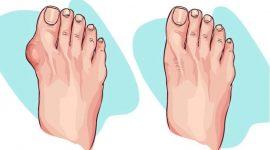 Info Shqip: Si t'i hiqni gungat e formuara tek gishti i madh i këmbës në mënyrë natyrale