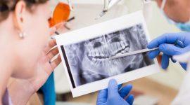 Info Shqip: Lamtumirë implanteve dentare, tani dhëmbët mund të ridalin sërish vetë