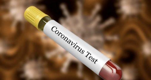 Info Shqip: 114 raste të reja me koronavirus në Kosovë